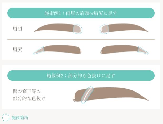 眉の追加部分施術、該当範囲