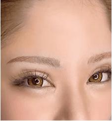 dazzy browの症例写真