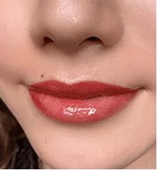 dazzy lipの症例写真