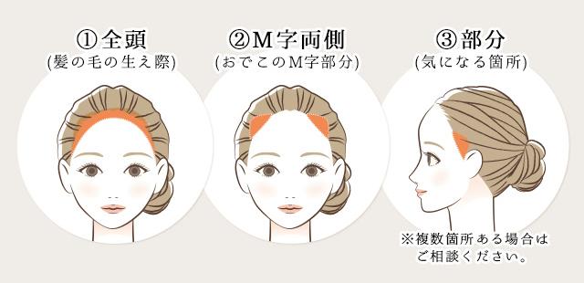hairlineアートメイク、3つのメニュー