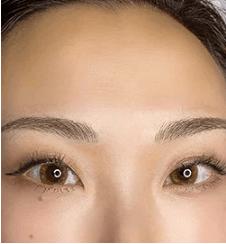 natural browの症例写真